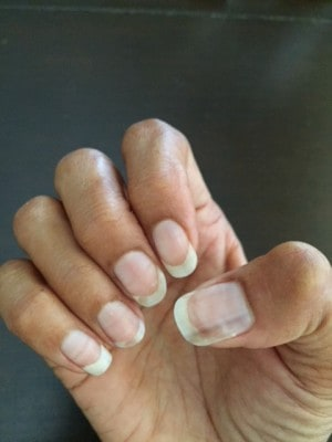 Nail Signs. The Cancer Scare. | Naked Truth By Dr Melanie